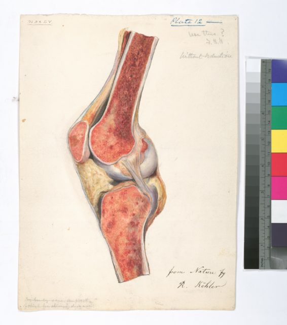 Plate 12. Dr. Gouley's case of chronic, [scrophulous] osteo-myelitis, following [white-swelling] of [knee]-joint. Amputation of thigh. [Resection] & recovery. Case 51.