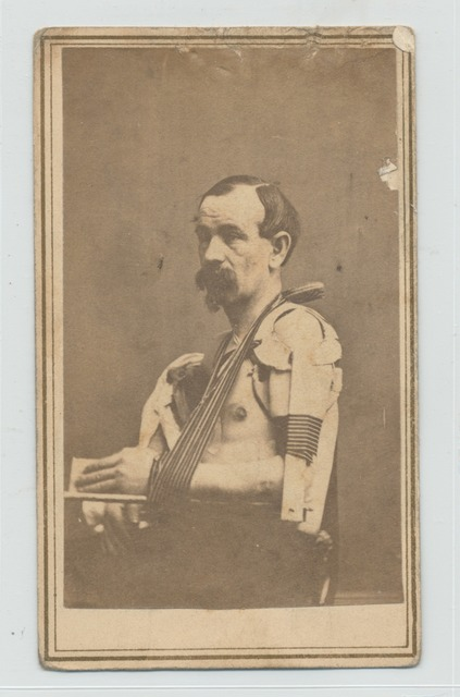 Shirtless seated man displays left arm in splint, resting in sling of striped cloth