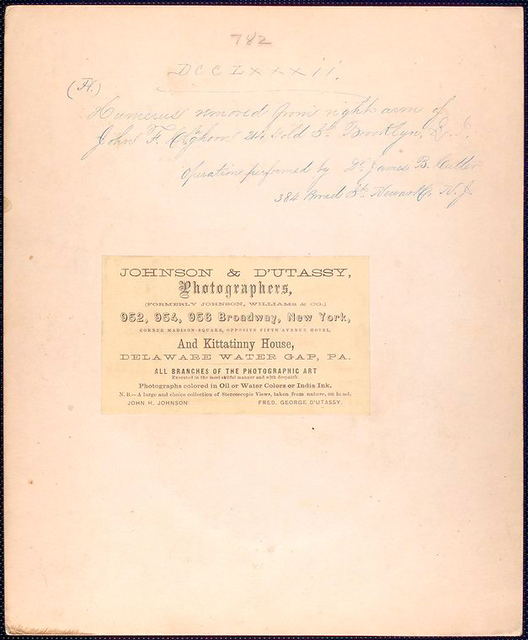 umerus removed from right arm of John F. Claghorn, 214 Gold St. Brooklyn, L.I. Operation performed by Dr. James B. [Cutter or Cutler], 384 Broad St. Newark N.J.