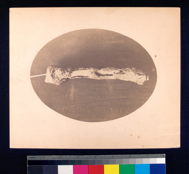 umerus removed from right arm of John F. Claghorn, 214 Gold St. Brooklyn. Operation performed by Dr. James B. [Cutter or Cutler], 384 Broad St. Newark N.J.